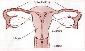 Kanker Ovarium (Indung Telur)